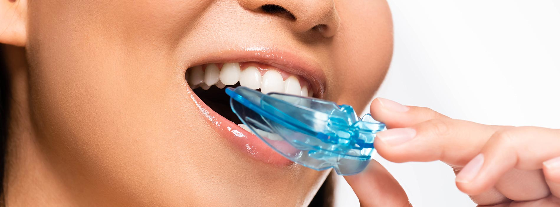 Woman is removing her mouth guard